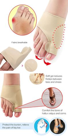 Description: Protect the bunion, relieve the pain of big toe Soft gel reduces friction between toes and shoes Comfort the bone of hallux valgus and corns Flexible fabric makes it suitable to most feet Bunion Pads, Bunion Relief, Foot Socks, Big Toe, Nail Accessories, Foot Pain, Feet Care, Health Advice, Get Healthy