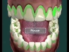 Sugar and Tooth Decay. When we've had too much of it we go and have a tooth-decay expert stick a drill in our mouth and fix some of the problems sugar has caused.  This video explains how sugar destroys tooth enamel,  #sugar #cavities