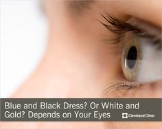 Is ‪#‎thedress‬ blue and black or white and gold? Why your eyes are deceiving you. #eyes