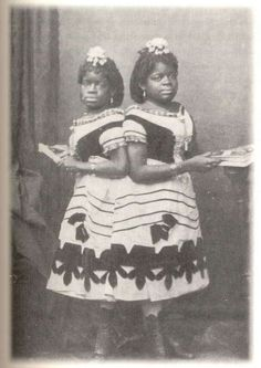 Millie and Christine McKoy were born on July 1851 in the little town of Welches Creek, North Carolina, joined together by a soft tissue connection at the sacrum. Their parents, Monimia and Jacob McKay, Human Zoo, American Horror Story Freak, Conjoined Twins, Vintage Circus, Vintage Carnival, African Diaspora, African American History, American Art, My Black Is Beautiful