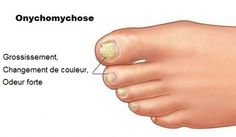 Onychomycose : quand les mycoses affectent les ongles