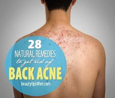 28 Effective Home Remedies for Back Acne   Beauty and MakeUp Tips.. Maybe these will work for my brother!