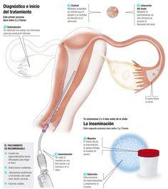 Inseminación artificial con semen de la pareja http://www.cirh.es/tratamientos-fiv/inseminacion-artificial/#IAC