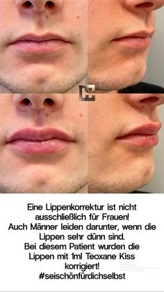 siehe Text! Lip Fillers, Lips, Top, Double Chin, Fuller Lips, Facial Expressions, Eyes
