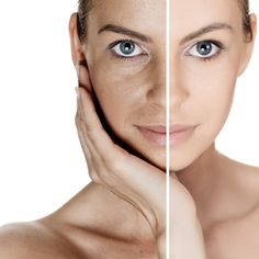 ReForms Aesthetics & Weight Loss: Radio Frequency Facial Rejuvenation Treatments