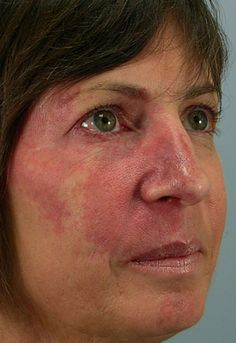Freckle Removal