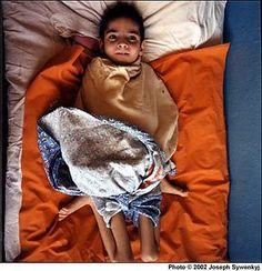 Chernobyl Children - Julio's Photos. severely deformed