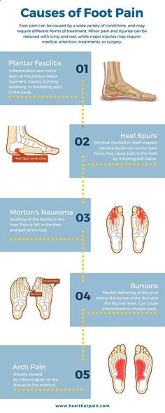 Foot pain chart: Do you know whats causing your foot pain? It may be one of a number of conditions: plantar fasciitis, heel spurs, bunions. Click to learn more about foot pain conditions.