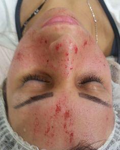 Client 1st treatment today. MAIN CONCERN:  OPEN PORES DULL SKIN BLACKHEADS WHITEHEADS & UN-EVEN SKIN TONE.  XMAS SPECIAL $200.00 ENDS 31/12/15 CALL (02) 8840 9533 #skin#skinneedling#face#amazingresults#facial#beautiful#celebrity#like4like#instalike#igers#ig#instafun#instahub#instaglam#instagood#instagram#instabeaut#instacomment#follow#followme#laserclinic#laseraway#laserclinic#laserhairremoval#granville#kimk#kimkardashian#celebrity by skintologyskinandlaserclinic