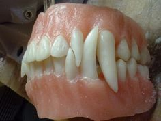 Made a new denture for a vampire. It was a real pain in the neck.