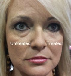 Instantly Ageless is the world's best fast acting anti aging wrinkle cream! best wrinkle cream, best anti aging cream, under eye bags, best anti aging products, best under eye cream, under eye circles, argireline, best eye cream for wrinkles, best eye creams, get rid of dark circles, anti aging skin care, Instantly Ageless Rachael Ray, Instantly Ageless Inside Edition