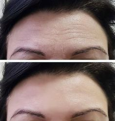 Beauty skincare tips are readily available on our web pages. Read more and you wont be sorry you did. Beauty Tips For Skin, Beauty Hacks, Hair Beauty, Face Care, Skin Care, Body Training, Face Massage, Shadow Hunters, Life Hacks