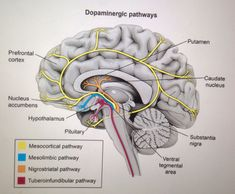Dopaminergic Pathways... Antipsychotics affect Dopamine in the brain... Risperidone affects the TUBEROINFUNDIBULAR pathway, causing decreased Dopamine and uninhibited Prolactin... This leads to Gynecomastia, Gallactorrhea, amenorrhea, and decreased libido