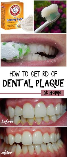 How to Remove Dental Plaque -Learn how to remove the dental plaque from your teeth, safely and naturally at home. Try to include these tips in your daily routine and see the results!