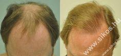 FUE Hajbeültetés hajátültetés 2820 graft FUE hair transplant 2820 grafts Sikos Clinic Budapest, Hungary