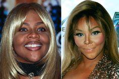Celebrity botox gone wrong youtube