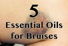 Essential Oils for Bruises include: Lavender, Cypress, Lemongrass, Geranium and Helichrysum. Arnica, Fennel, Chamomile, and Yarrow can be used in a mixture