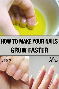 "How to Make Your Nails Grow Faster A crucial element for a perfect look is healthy and beautiful nails. If you're wondering frequently ""How to get my nails grow faster?"" here are some simple and easy remedies that you can apply at home. Make Nails Grow, Grow Nails Faster, Grow Long Nails, How To Make Your Hair Grow Faster, Nail Care Tips, Nail Tips, Nail Growth Tips, Fast Nail Growth, Do It Yourself Nails"