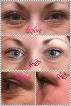 4 weeks with Rodan + Fields eye cream! (One of our best sellers!) She's actually wearing more make up in her 'before' picture.