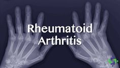 A Chinese team of researchers determined that activation of the CB2 receptor (which occurs when consuming cannabis), could treat rheumatoid arthritis.