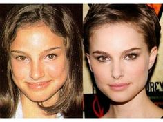 Natalie Portman Nose Job is the latest news from the popular Hollywood actress. Natalie Portman is issued that she has undergone plastic surgery, especially nose job. Natalie Portman, Nose Plastic Surgery, Plastic Surgery Gone Wrong, Nose Surgery, Jennifer Aniston, Botox Forehead, Celebrities Before And After, Celebrity Plastic Surgery, Under The Knife