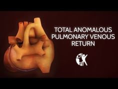 Total Anomalous Pulmonary Venous Return: My son's Heart Defect