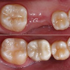 Improving the Predictability of Restorative Outcomes Utilizing Tapered Dental Implants