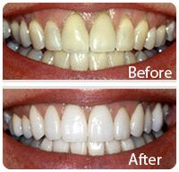 Laser Teeth Bleaching also known as Tooth whitening or teeth whitening. It is a common procedure and is very effectively done by using Dental Lasers