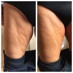 """Treat cellulite, stretch marks and saggy skin with """"bye bye cellulite creme'  It tightens skin and reduces stretch marks.  learn more and visits us@  fountain.juchheim-methode.de"""
