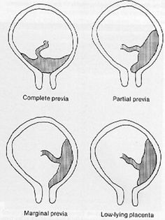 Where to listen for the fetal heart tones in different
