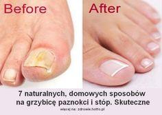 Jak naturalnie wyleczyćgrzybicę paznokci i stóp. Jak rozpoznać i jak zastosować 7 naturalnych domowych sposobów (bardzo prostych i skutecznych)na pozbycie się grzybicy (6 i 7 przepis - super).  Przeczytaj i przekaż innym, gdyż infekcje grzybicze(grzybica) paznokci Beauty, Diet, Beleza, Cosmetology