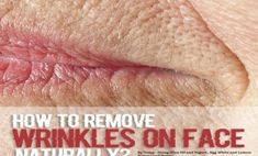 Face wrinkles can diminish your beauty. Here are the best home remedies methods for how to remove wrinkles on face naturally. Stretch Mark Remedies, Stretch Mark Removal, Stretch Marks, Face Wrinkles, Prevent Wrinkles, Wrinkle Remedies, Face Scrub Homemade, Wrinkle Remover, Anti Aging Skin Care