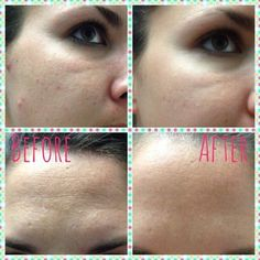 Arm & Hammer baking soda + water, apply to face, leave on for 15 minutes each day. See results in two weeks. by terri