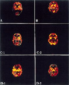 Single Photon Emission Computerized Tomography (SPECT) is an imaging device that provides a picture of the functioning of the brain. of patients with chronic LD have multiple areas of hypo perfusion. Lyme Disease, Medical History, Child Life, Chronic Illness, Nervous System, Brain, Biology, Columbia, University