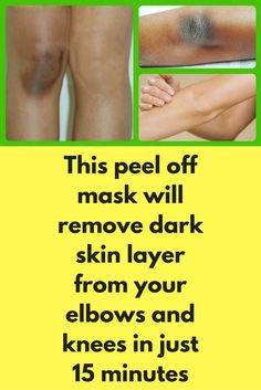 This peel off mask will remove dark skin layer from your elbows and knees in just 15 minutes Dark and knee region of our body is usually darker and most of the time it is because of dead skin layer that accumulates in this region. It is very easy to get rid of this darkness by following few simple natural remedies Step 1- Remove dead skin layer For this step you will need …