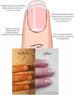 Notice: Undefined variable: desc in /home/www/weselnybox.phtml on line 23 Nail Care Tips, Nail Tips, Prom Make Up, Damaged Nails, Fire Nails, Nails 2018, Healthy Nails, Nail Inspo, Natural Nails