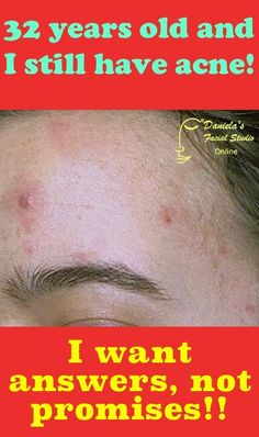 Live in the US and are above the age of 24? You want answers to your #adult #acne problem, not silly promises.