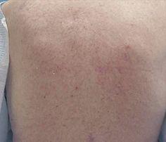 Notalgia Parestésica é o nome dado à coceira crônica nas costas causada por alterações nos nervos de sensibilidade da coluna torácica