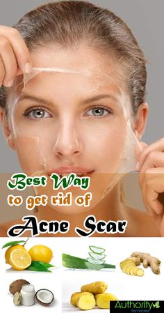 home remedies for acne on back