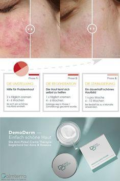 Gewöhnliche Cremes beseitigen oft nur die Symptome. DemoDerm setzt an den Ursachen an. Austria, Pimple, News, Nursing Care, Summer