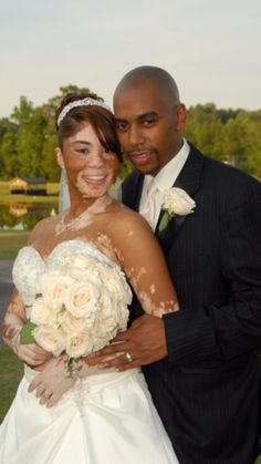 Couple's Wedding Photo Goes Viral, Inspires Others With Vitiligo Skin Condition (PHOTO) Black Love, My Black Is Beautiful, Beautiful Couple, Black Art, Beautiful Bride, Absolutely Gorgeous, Beautiful Things, Beaux Couples, Couples In Love