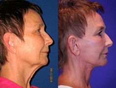 Judith, 70 Before and After: Facelift / Reflection Lift Results: Judith is a 70 year-old patient who presented with concerns related to sagging in the jowls and marked sagging in the neck with heavy platysmal bands.  She felt that these issues gave her an aged appearance that she did not like.