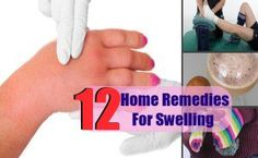 12 Home Remedies For Swelling