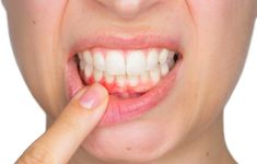 GROW BACK YOUR RECEDING GUMS WITH THESE NATURAL REMEDIES! - Shape It...