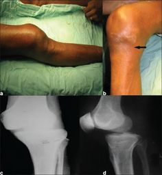 Knee Pain And Swelling