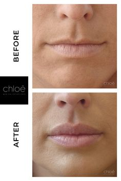 Discover professional injections for lip augmentation at Clinique Chloe aesthetic medicine Montreal. Dermal Fillers, Lip Fillers, Perfect Image, Perfect Photo, Love Photos, Cool Pictures, Aesthetic Dermatology, Lip Augmentation, Big Lips