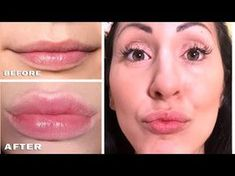 COME INGRANDIRE LE LABBRA SENZA CHIRURGIA !!!! | Carlitadolce - How To L... Beauty Make Up, Diy Beauty, Beauty Skin, Health And Beauty, Beauty Hacks, Beauty Care Routine, Seed Bead Bracelets, Cellulite, Surgery