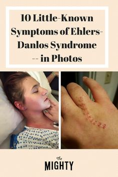 10 Photos of Little-Known Symptoms of Ehlers-Danlos Syndrome | The Mighty