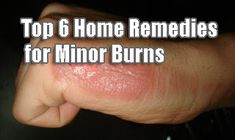 Top 6 Home Remedies for Minor Burns Cough Remedies, Herbal Remedies, Health Remedies, Natural Teething Remedies, Natural Cold Remedies, Home Remedies For Burns, Herbal Cure, Health Motivation, Healthy Tips