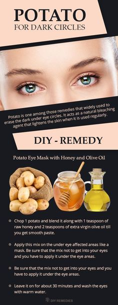 How Potato works for Reducing Dark Circles